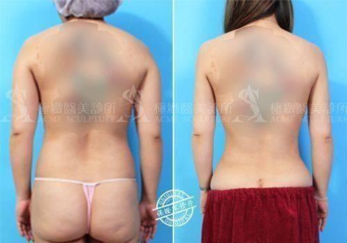 抽脂 余德毅醫師 雙波抽脂 超音波抽脂 腹部抽脂 小腹 塑身 雕塑 雙波抽脂 自體脂肪豐胸 超音波抽脂 動力振波 UAL PAL SAFELipo