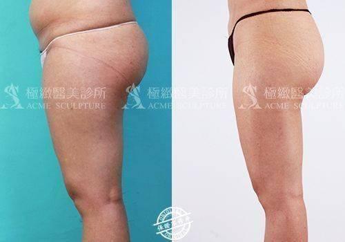 極緻醫美 威塑 抽脂 雙波抽脂 超音波抽脂 大腿抽脂 腹部抽脂 小腹 塑身 雕塑 雙波抽脂 自體脂肪豐胸 超音波抽脂 動力振波 UAL PAL SAFELipo