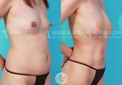 極緻醫美 威塑 抽脂 雙波抽脂 超音波抽脂 腹部抽脂 小腹 塑身 雕塑 雙波抽脂 自體脂肪豐胸 超音波抽脂 動力振波 UAL PAL SAFELipo