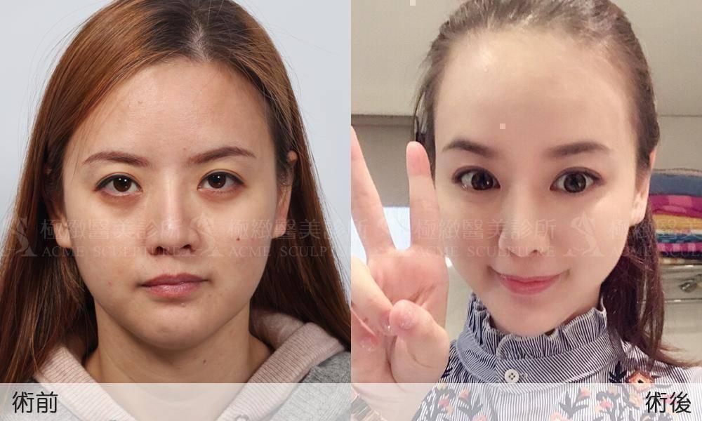 微創提眉 提眉 雙眼皮 初老 極緻醫美 恢復短