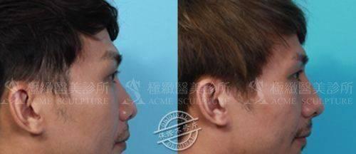 極緻醫美結構式隆鼻隆鼻手術隆鼻墊下巴手術墊下巴08