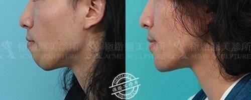 極緻醫美結構式隆鼻隆鼻手術隆鼻墊下巴手術墊下巴11