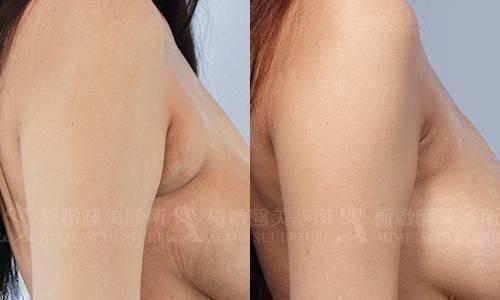 極緻醫美 威塑 抽脂 雙波抽脂 超音波抽脂 副乳 手臂抽脂 蝴蝶袖 塑身 雕塑 雙波抽脂 自體脂肪豐胸 超音波抽脂 動力振波 UAL PAL SAFELipo