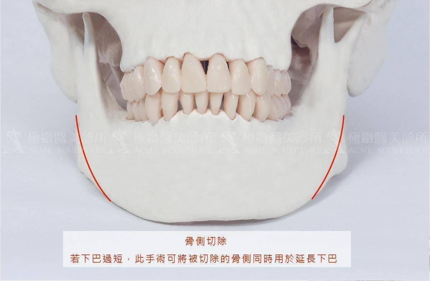 極緻醫美 削骨 臉型 下頷骨 V臉 v-line 下巴延長 自體截骨