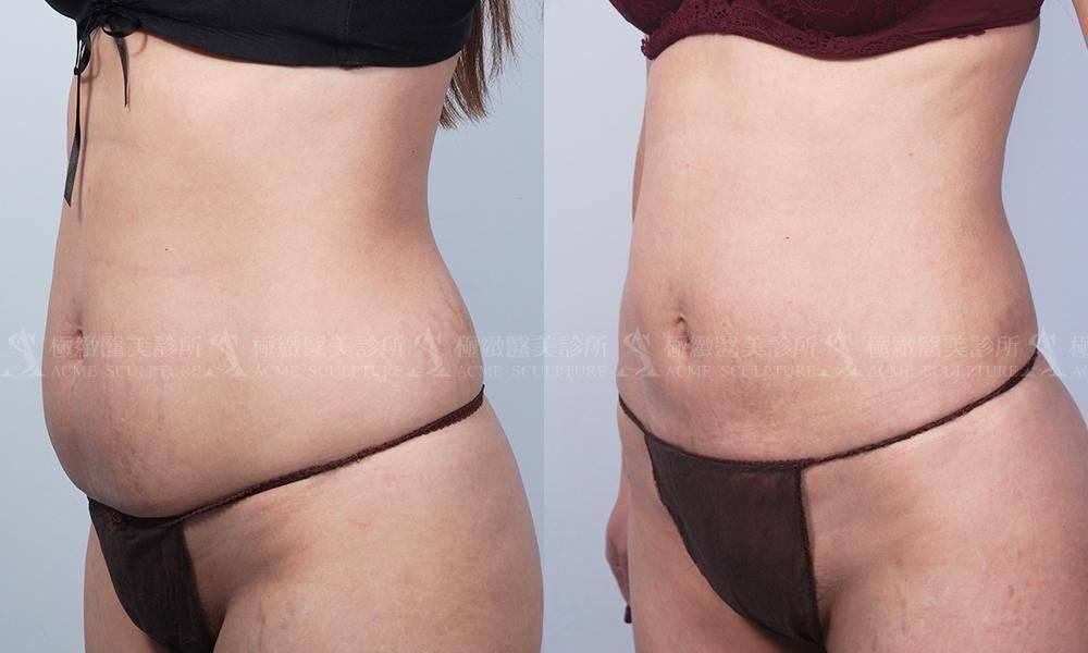 極緻醫美 威塑 雙波 抽脂 腹部環抽 小腹 產後 產後瘦身