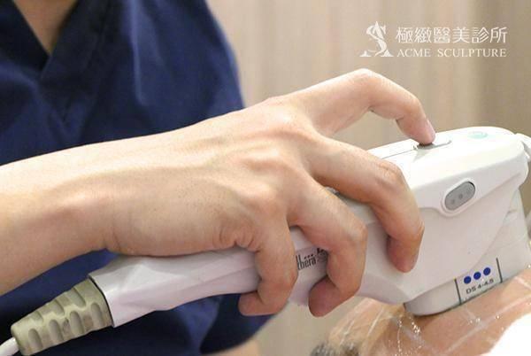 ulthera ultherapy 超音波拉皮 音波拉皮 極線音波 拉提 緊緻 筋膜層拉提 SMAS