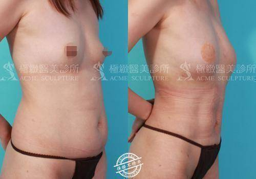 極緻醫美vaser威塑體雕抽脂背部抽脂腹部抽脂腰腹抽脂蝴蝶袖自體脂肪豐胸自體脂肪移植