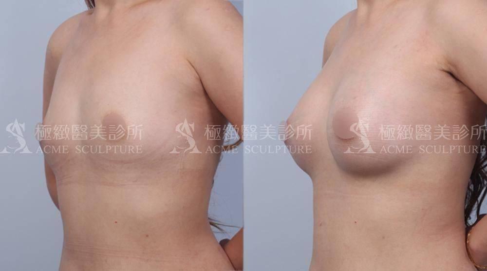內視鏡隆乳,果凍矽膠隆乳,極緻醫美,breast augmentation