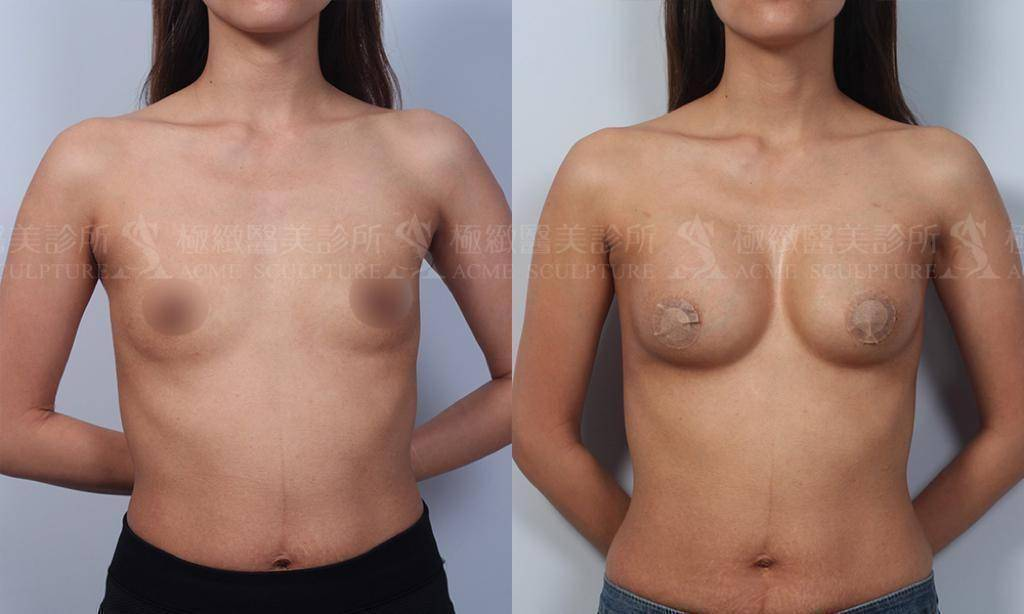 極緻醫美 內視鏡果凍矽膠隆乳 豐胸