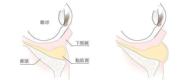 極緻醫美 眼袋 淚溝 眼袋手術 老化 眼袋內開眼袋外開