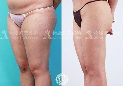極緻醫美抽脂威塑抽脂威塑體雕威塑醫師小腹馬甲線瘦身vaser taipei liposuction