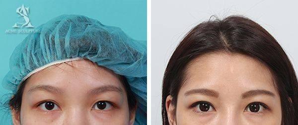 雙眼皮手術隆鼻手術隆鼻雙眼皮結構式隆鼻極緻醫美雙眼皮 推薦隆鼻推薦隆鼻費用03.jpg