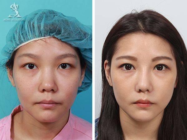 雙眼皮手術隆鼻手術隆鼻雙眼皮結構式隆鼻極緻醫美雙眼皮 推薦隆鼻推薦隆鼻費用08.jpg