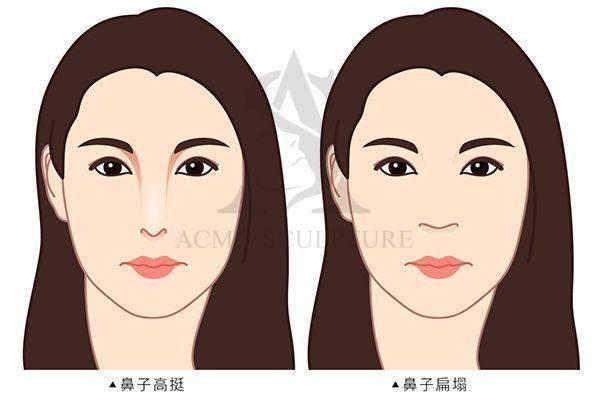 雙眼皮手術隆鼻手術隆鼻雙眼皮結構式隆鼻極緻醫美雙眼皮 推薦隆鼻推薦隆鼻費用02