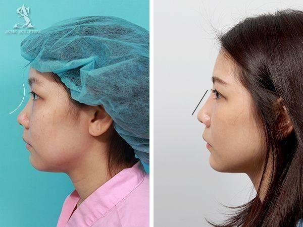 雙眼皮手術隆鼻手術隆鼻雙眼皮結構式隆鼻極緻醫美雙眼皮 推薦隆鼻推薦隆鼻費用05