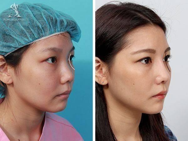 雙眼皮手術隆鼻手術隆鼻雙眼皮結構式隆鼻極緻醫美雙眼皮 推薦隆鼻推薦隆鼻費用06