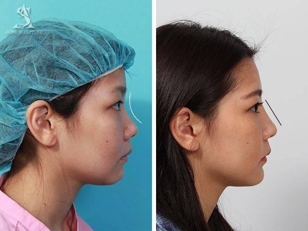 雙眼皮手術隆鼻手術隆鼻雙眼皮結構式隆鼻極緻醫美雙眼皮 推薦隆鼻推薦隆鼻費用07