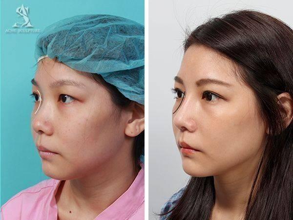 雙眼皮手術隆鼻手術隆鼻雙眼皮結構式隆鼻極緻醫美雙眼皮 推薦隆鼻推薦隆鼻費用04