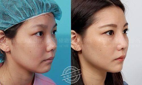 極緻醫美結構式隆鼻隆鼻手術隆鼻敲鼻骨駝峰
