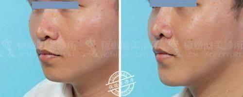 極緻醫美結構式隆鼻隆鼻手術隆鼻墊下巴手術墊下巴人工骨下巴Goretex下巴