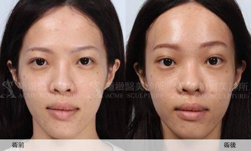 極緻醫美微創拉提提眉隱痕內視鏡提眉雙眼皮中臉拉提 taiwan taipei acmeclinic forehead forehead facelift