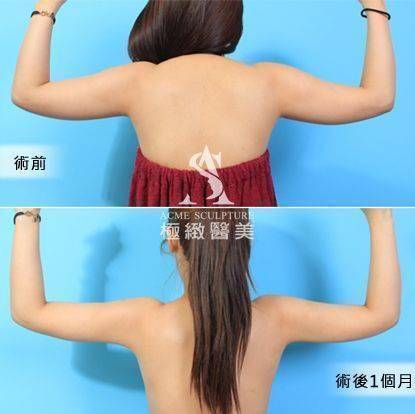 極緻醫美抽脂威塑抽脂威塑體雕威塑醫師小腹馬甲線手臂抽脂瘦身vaser taipei liposuction