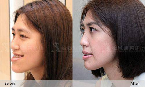 極緻醫美正顎OGS戽斗 taiwan taipei acmeclinic plasticsurgeon Orthognathic surgery