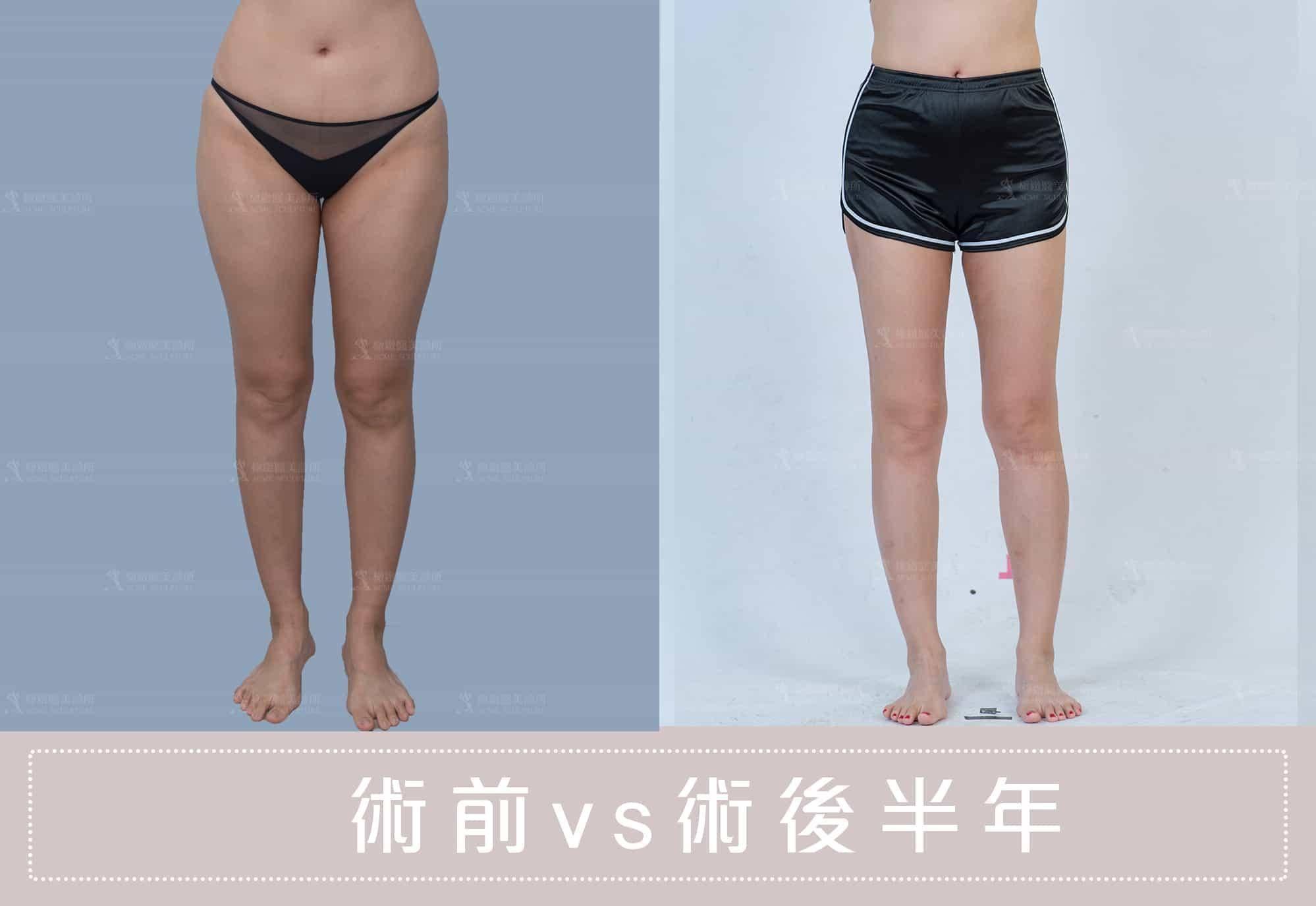 威塑抽脂讓你擁有迷人大腿線條
