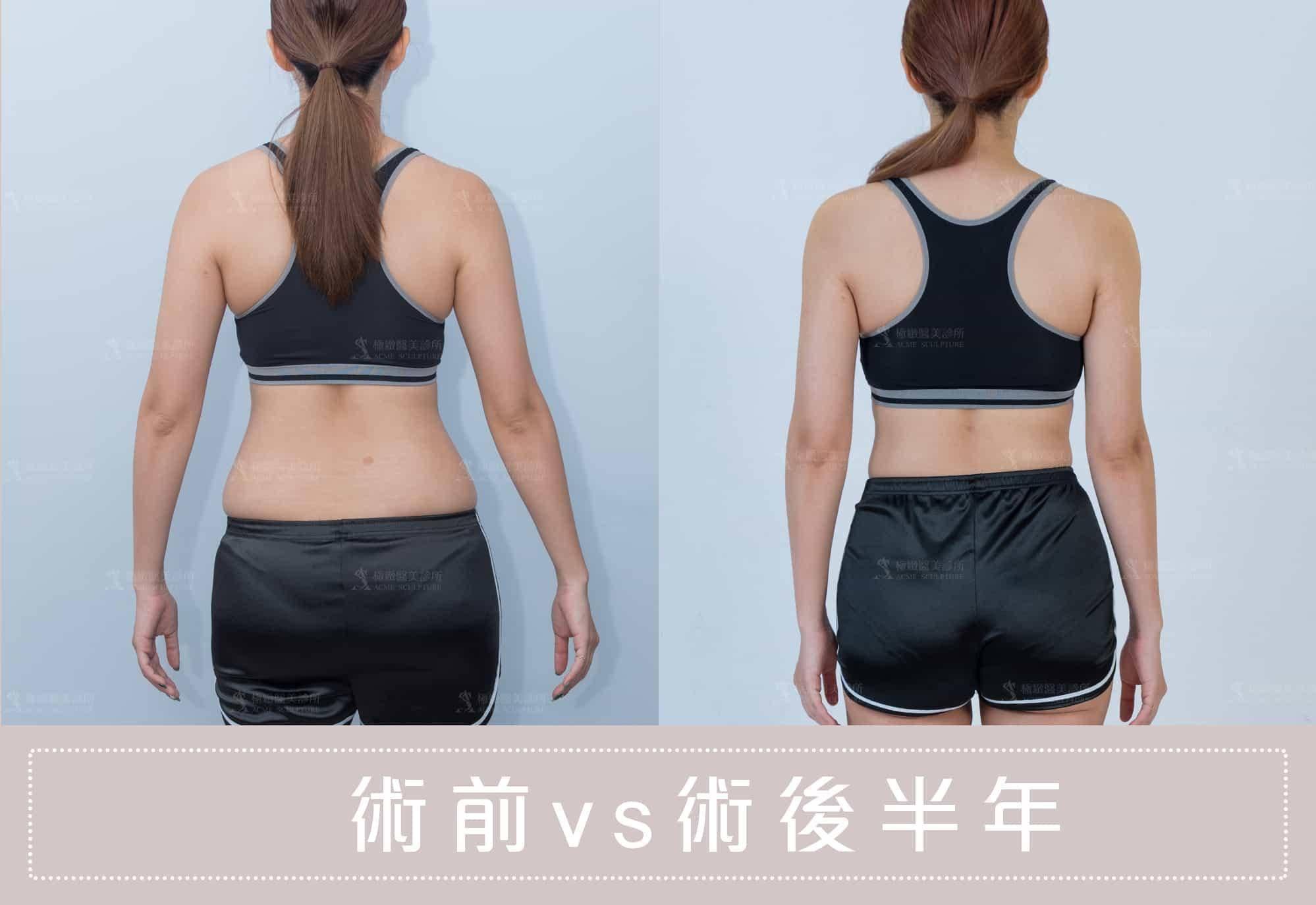 威塑抽脂解決運動也減不掉的脂肪