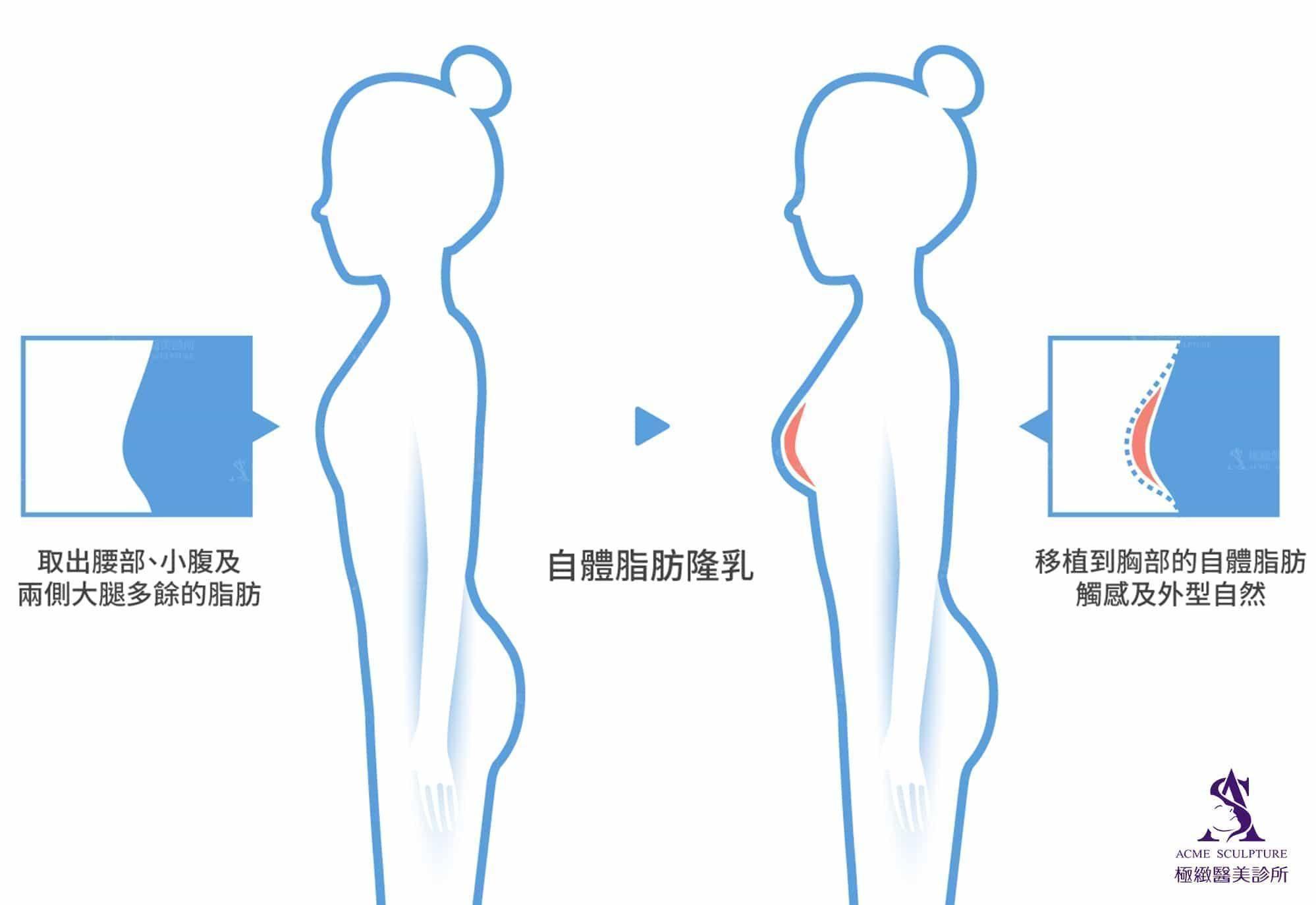 簡單瞭解自體脂肪豐胸是什麼