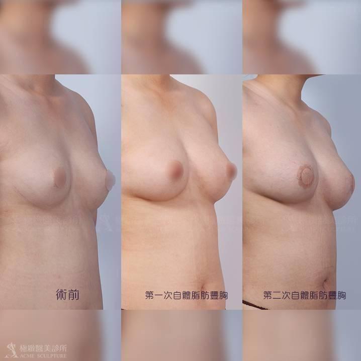 自體脂肪移植,自體脂肪隆乳,自體脂肪補胸,脂肪槍,補脂