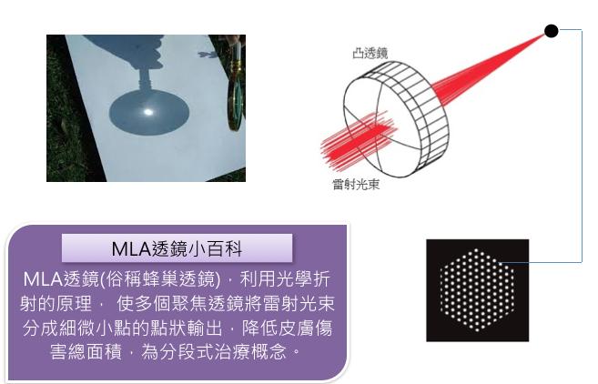 極緻醫美 皮秒雷射 picosecond laser HEXA多焦 蜂巢
