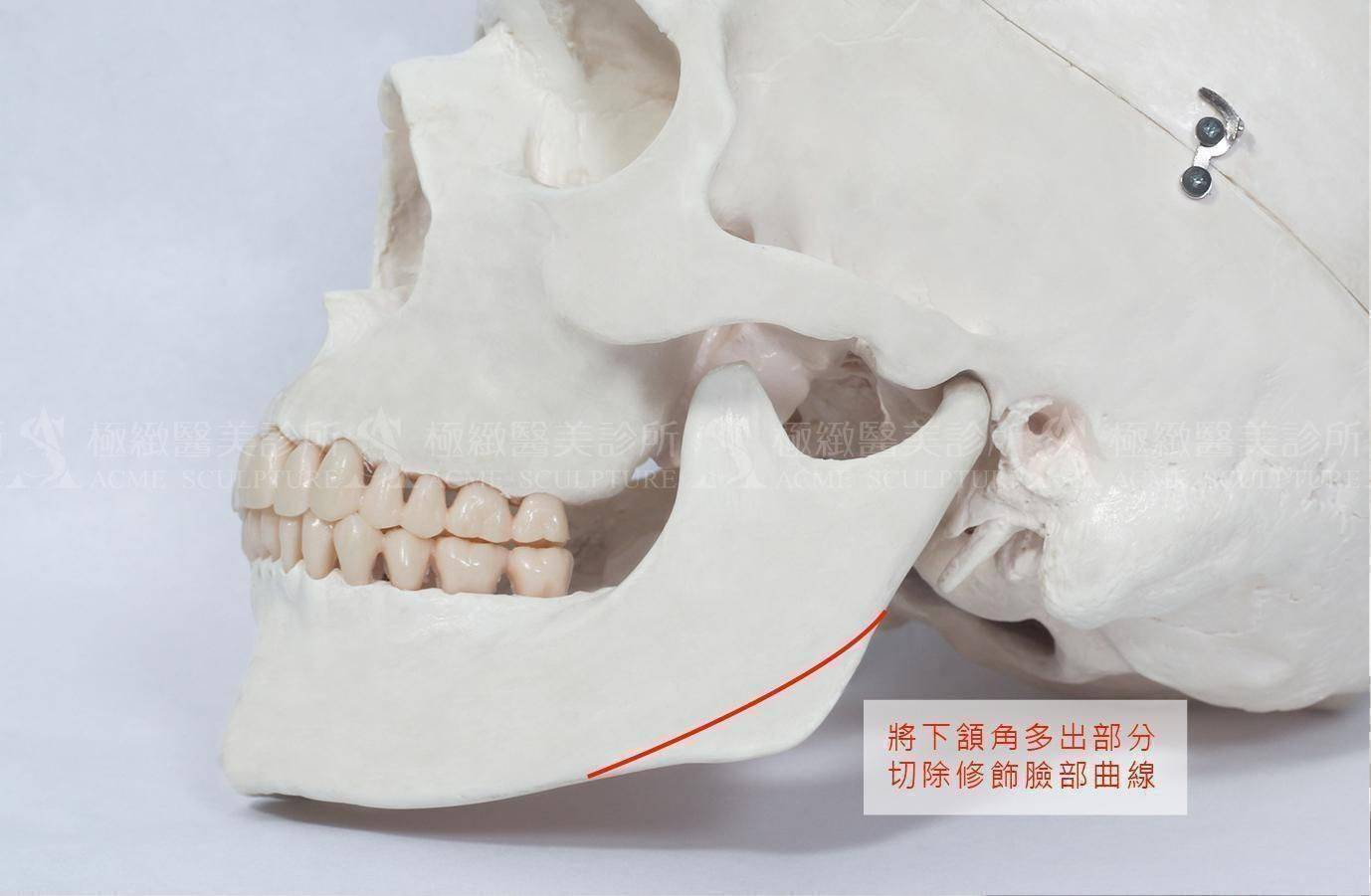 極緻醫美 削骨 臉型 下頷骨 V臉 v-line