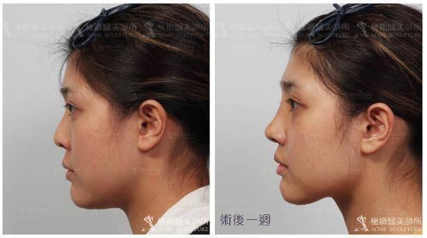 隆鼻,韓式隆鼻,三段式隆鼻,結構式隆鼻,顏正安,林日新,極緻醫美