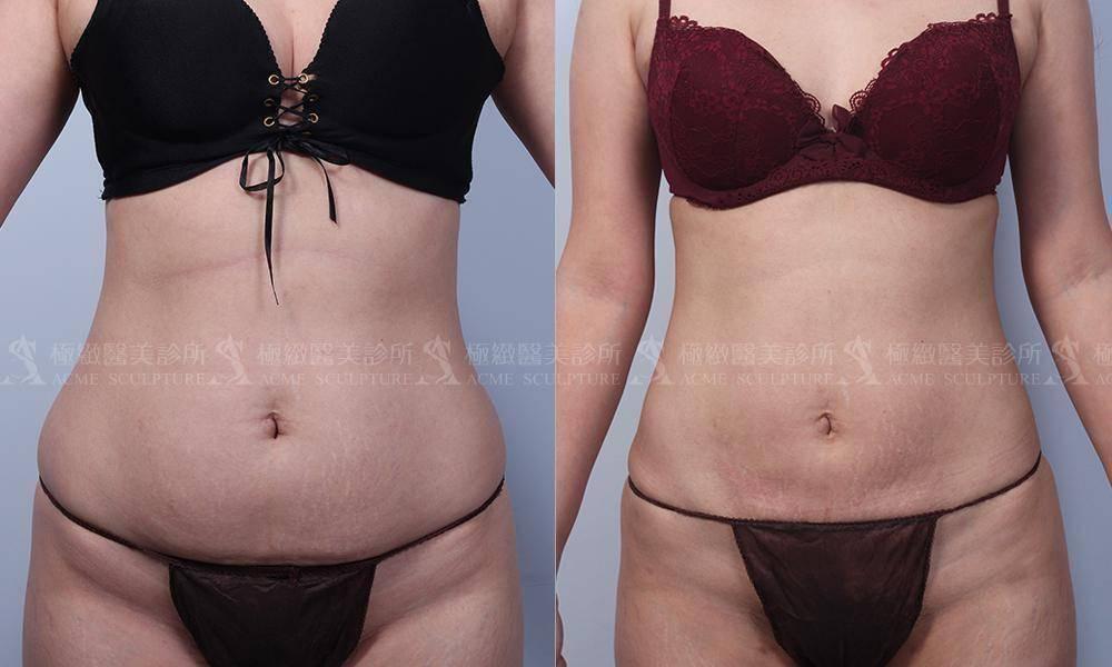 極緻醫美威塑抽脂VASER 威塑 雙波 抽脂 腹部環抽 小腹 產後 產後瘦身
