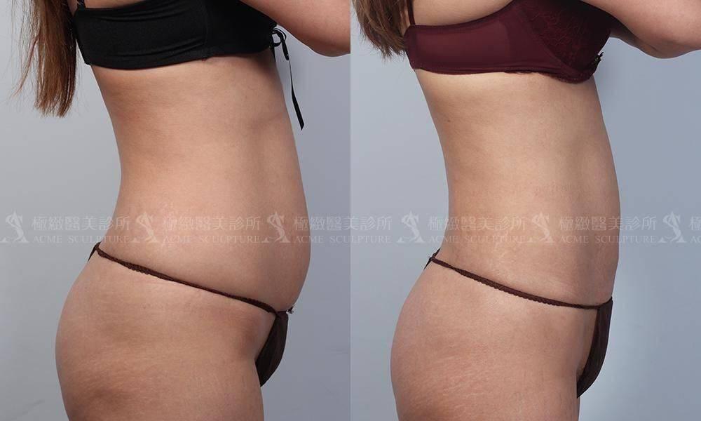 極緻醫美威塑抽脂VASER極緻醫美 威塑 雙波 抽脂 腹部環抽 小腹 產後 產後瘦身