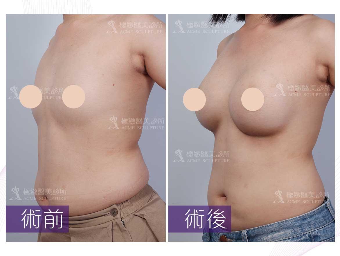 隆乳,平胸,胸部小,小奶,大奶,魔滴隆乳,魔滴,隆乳推薦,隆乳材質,假體隆乳,隆乳醫美,隆乳醫師,台北隆乳,魔滴醫師,魔滴醫美,魔滴診所