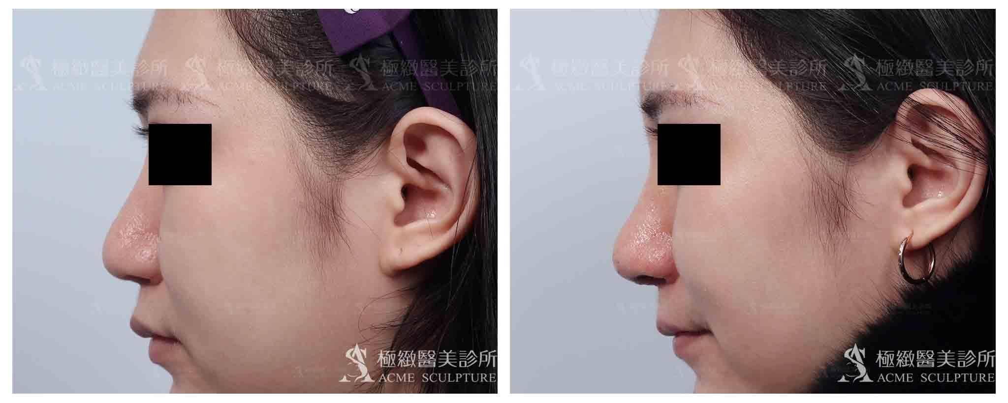 隆鼻,隆鼻案例,隆鼻推薦,隆鼻醫生,隆鼻台北,中山區隆鼻,醫美隆鼻