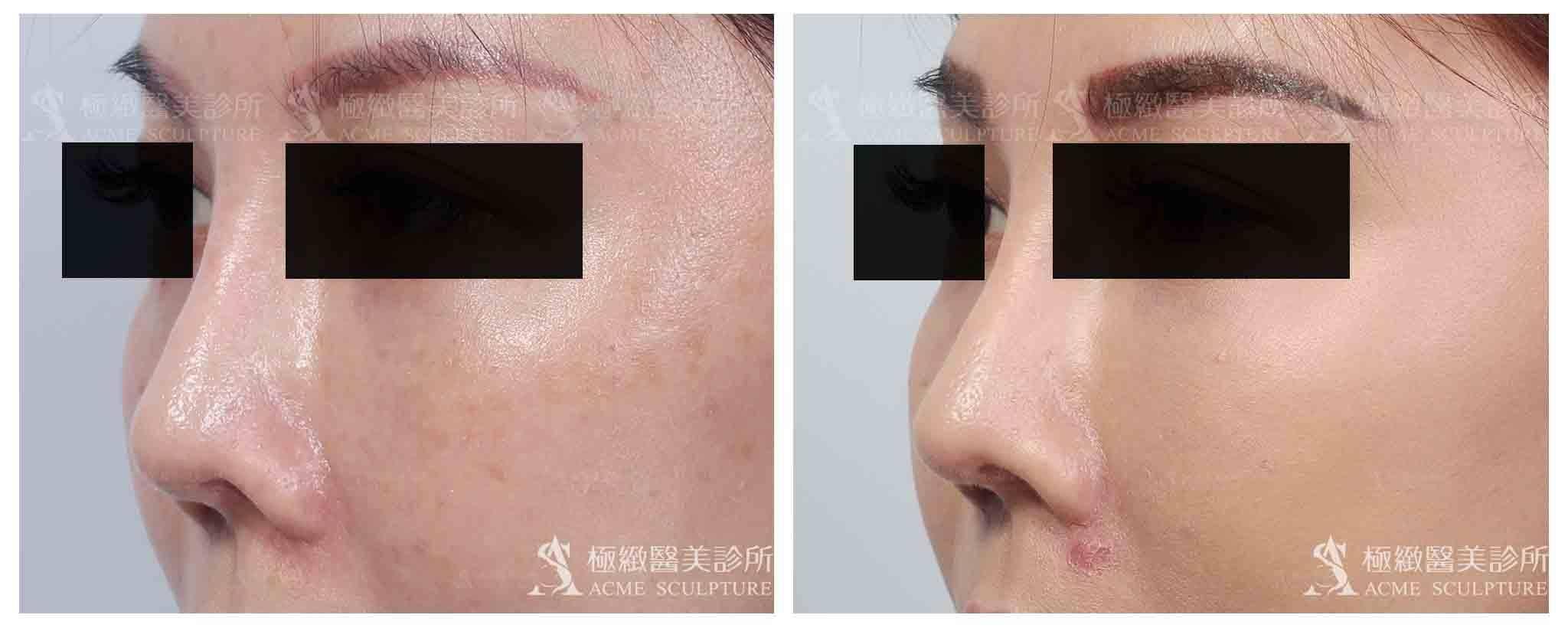 鼻頭重修,鼻頭重建,搶救鼻頭,鼻頭整形,顏正安醫師,顏正安醫生