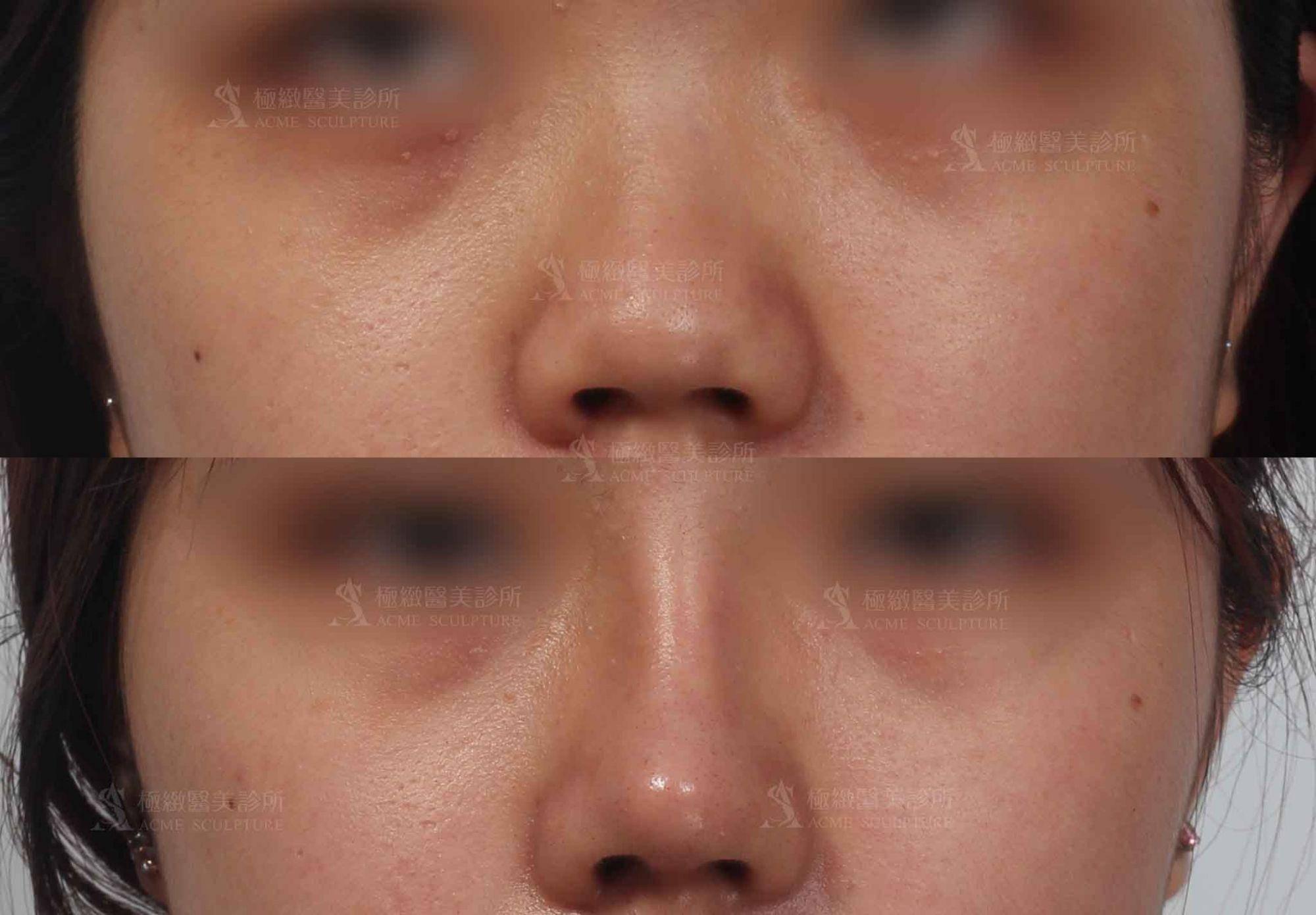 顏正安醫師,結構式隆鼻,隆鼻分享,隆鼻案例,隆鼻手術,醫美隆鼻,隆鼻推薦,隆鼻醫美,隆鼻診所,中山區隆鼻,台北隆鼻,隆鼻醫師,林日新醫師,林日新隆鼻,林日新評價