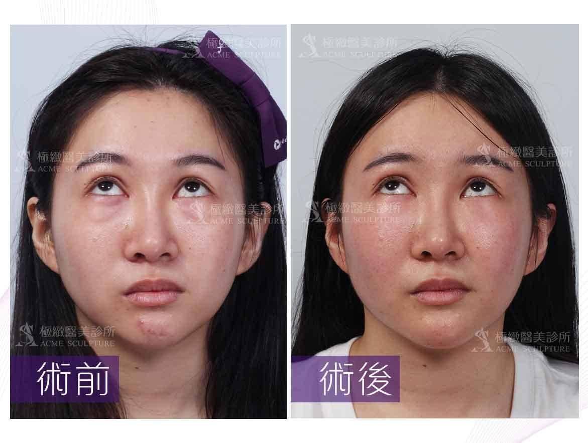 眼袋,割眼袋,眼袋手術,除眼袋推薦,除眼袋,除眼袋醫師,眼袋醫師,台北眼袋醫師,台北割眼袋,割眼袋診所,割眼袋方式,割眼袋術後,割眼袋分享,割眼袋對比