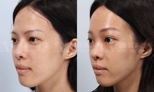 微創提眉手術提眉提眉手術內視鏡微創提眉前額拉皮極緻醫美雙眼皮雙眼皮手術