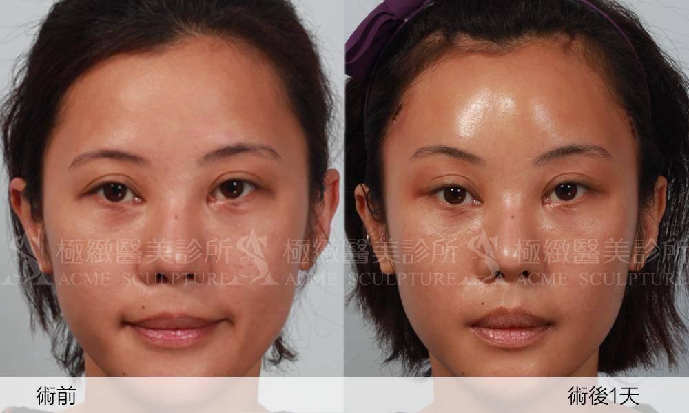 極緻醫美微創拉提提眉眼尾下垂眉壓眼眼距過窄雙眼皮縫雙眼皮割雙眼皮極緻醫美