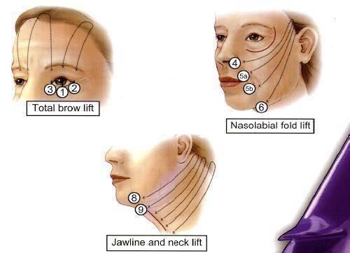 新興微創手術埋線拉提有助於臉部肌膚,塑造緊緻曲線