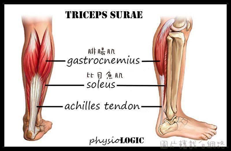 瘦小腿,小腿肌,RF電波,瘦腿手術,小腿手術,小腿肌手術,羅景家醫師,羅景家醫生