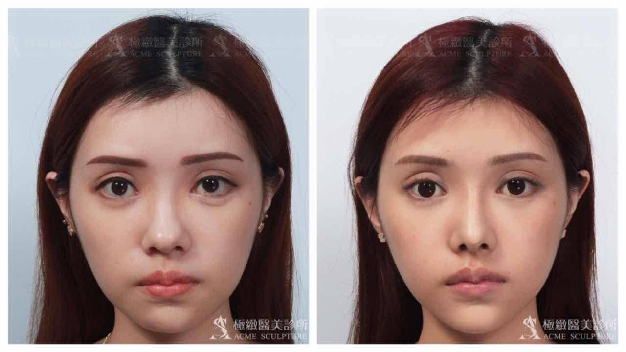 極緻醫美結構式隆鼻實例-正面照