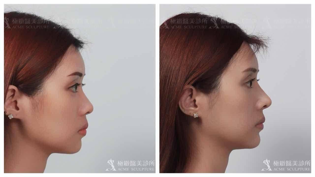 極緻醫美結構式隆鼻實例-側面照