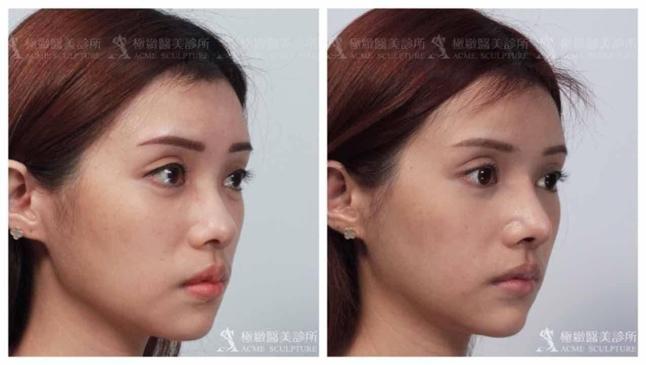 極緻醫美結構式隆鼻實例-微側面照