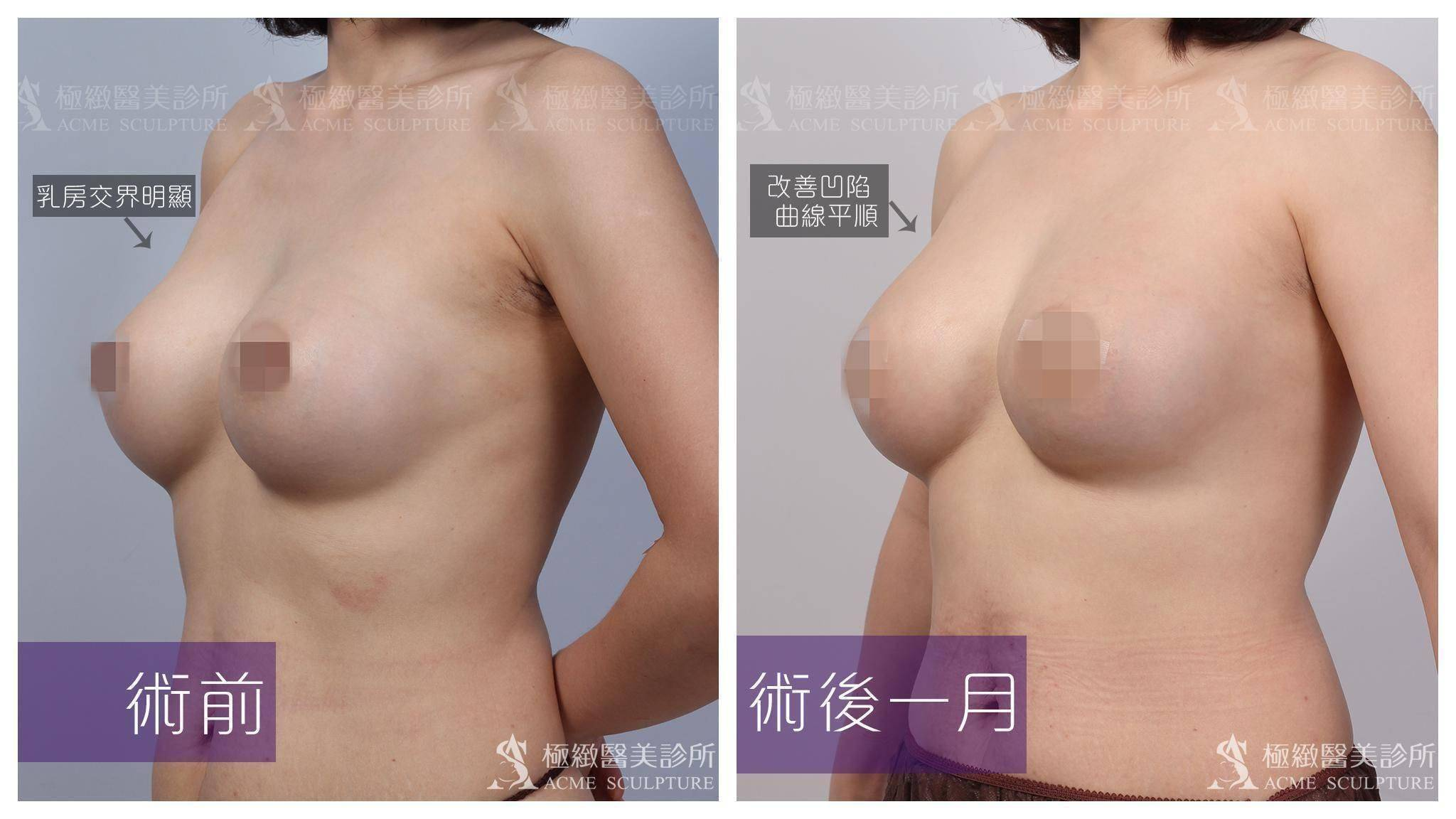 極緻醫美|複合式隆乳案例