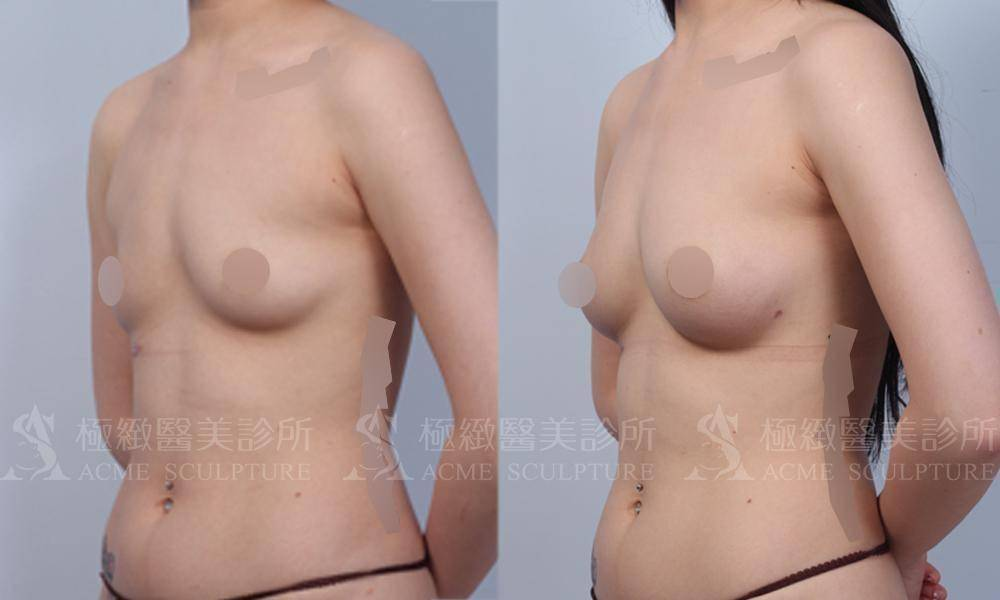 極緻醫美威塑自體脂肪豐胸隆乳威塑抽脂補胸VASER liposuction fat grafting plastic surgeon taipei aesthetic